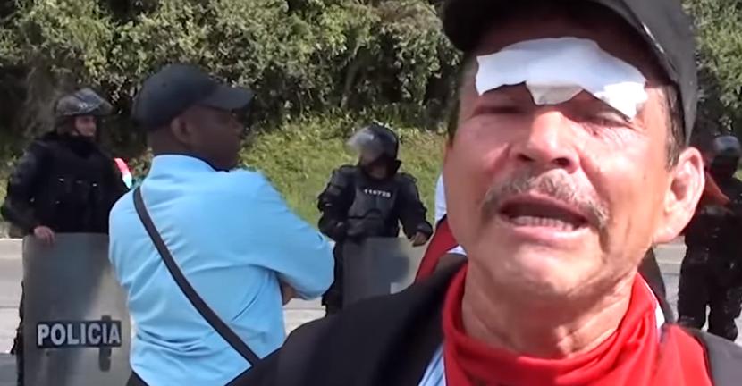 El Esmad deja al menos 18 heridos en Cauca - Sin-título