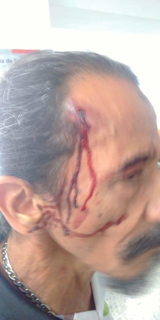 Antioquia Ciudadano estadounidense agrede a militante comunista de tercera edad en Envigado - whatsapp_image_2019-08-08_at_14.26.11