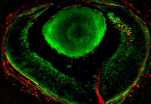 neuronas-retina - neuronas-retina-300x206