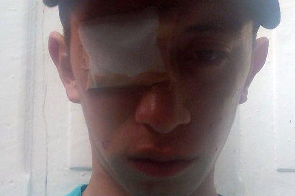 """Informe de Human Rights Watch """"brutalidad policial contra manifestantes"""" - Nicolas-Saavedra"""